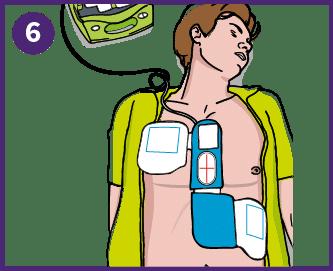 6. Kiinnitä elektrodit